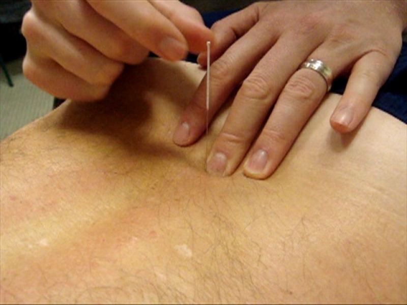 The role of touch in acupuncture treatment